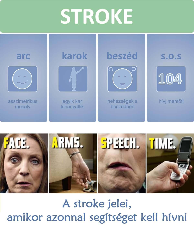 Stroke jelei, agyvérzés tünetei, aszimmetrikus arc, egyik kar lehanyatlik, nehézségek a beszédben